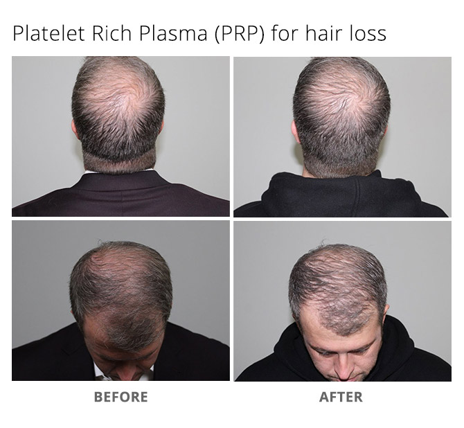 hair loss 1 - Platelet Rich Plasma (PRP) for Hair Loss