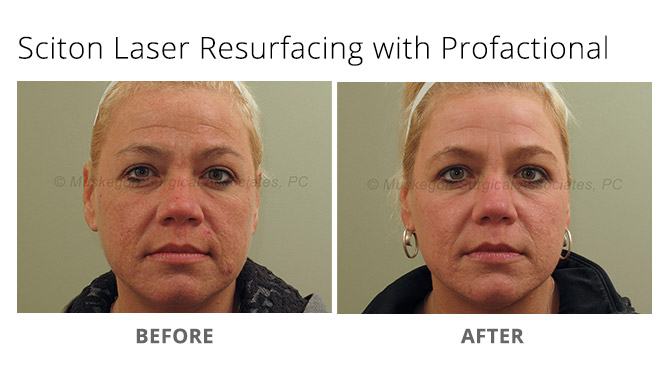 laser skin resurfacing 1 - Sciton Laser Treatments