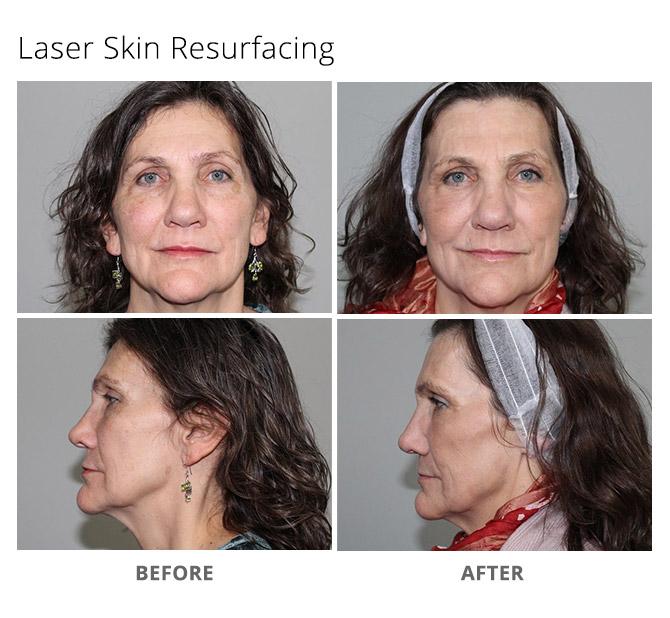 laser skin resurfacing 2 - Sciton Laser Treatments