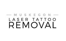 laser tattoo removal logo - Laser Tattoo Removal