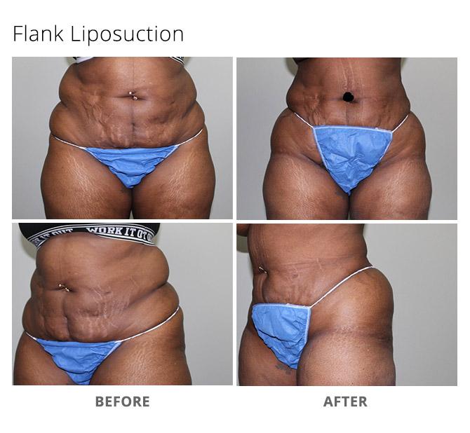 liposuction 1 - Liposuction