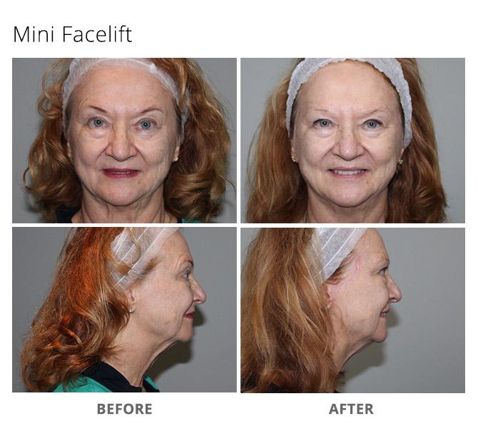 mini facelift 2 - Mini Facelift