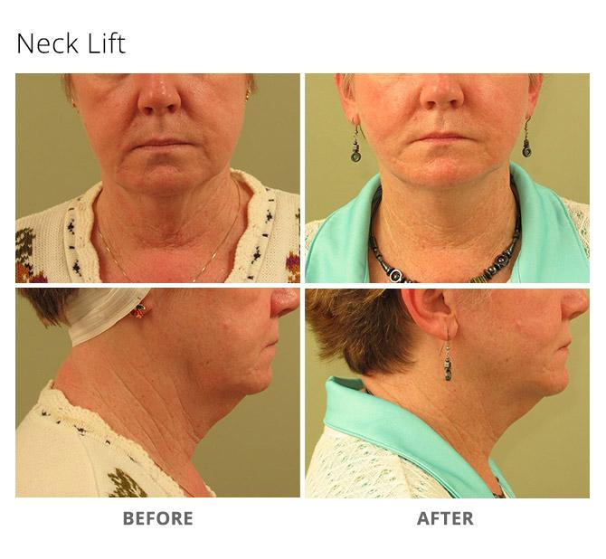 neck lift 1 - Neck Lift