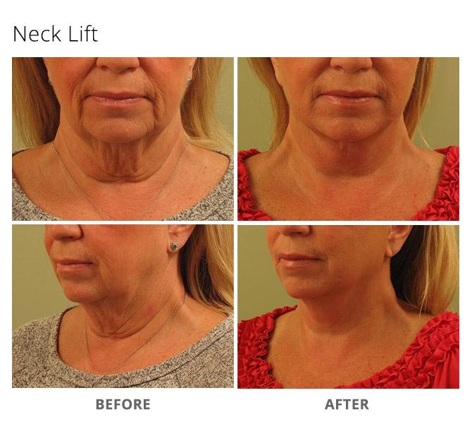 neck lift 2 - Neck Lift
