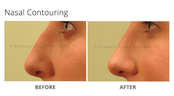 nose reshaping 1 - Nose Reshaping