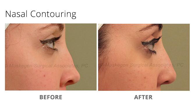 nose reshaping 2 - Nose Reshaping