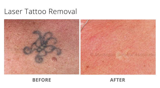 tattoo removal 1 - Laser Tattoo Removal