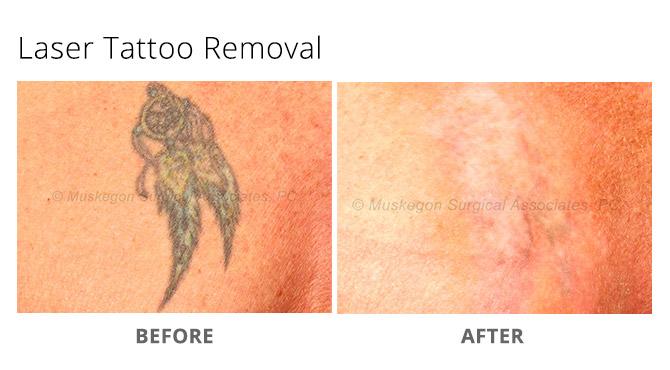 tattoo removal 2 - Laser Tattoo Removal