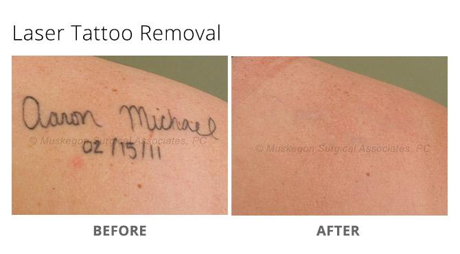tattoo removal 3 - Laser Tattoo Removal