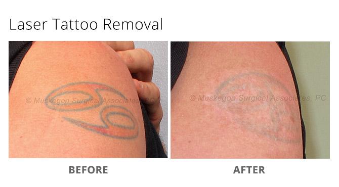 tattoo removal 4 - Laser Tattoo Removal