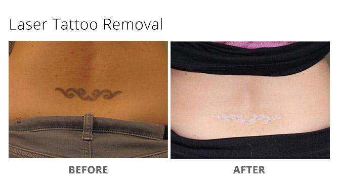 tattoo removal 5 - Laser Tattoo Removal