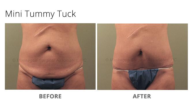 tummy tuck 4 - Tummy Tuck
