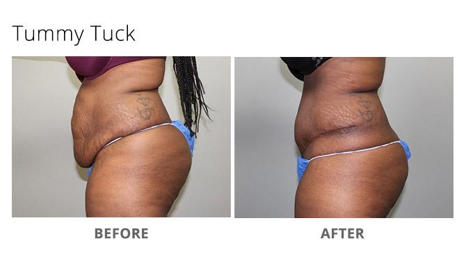 tummy tuck 5 - Tummy Tuck