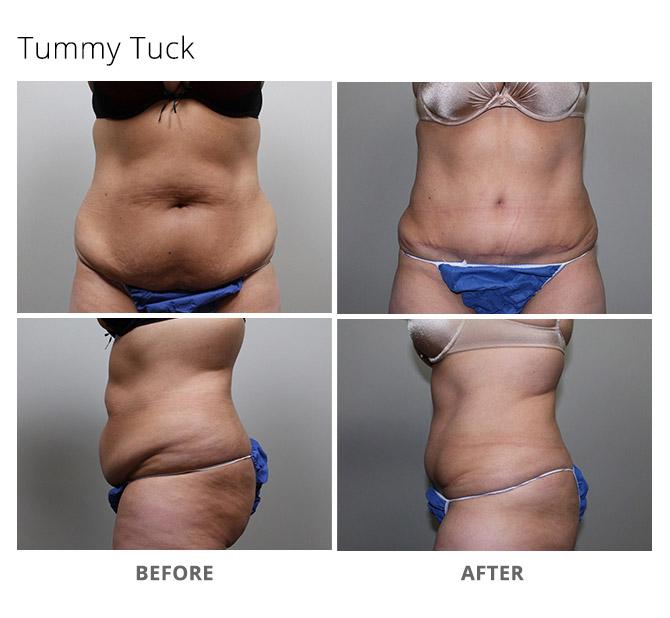 tummy tuck 8 - Tummy Tuck