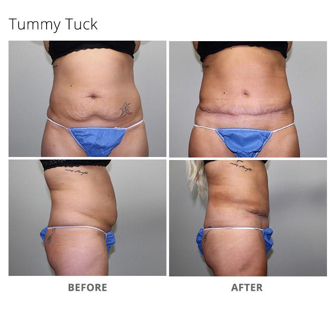 tummy tuck 9 - Tummy Tuck