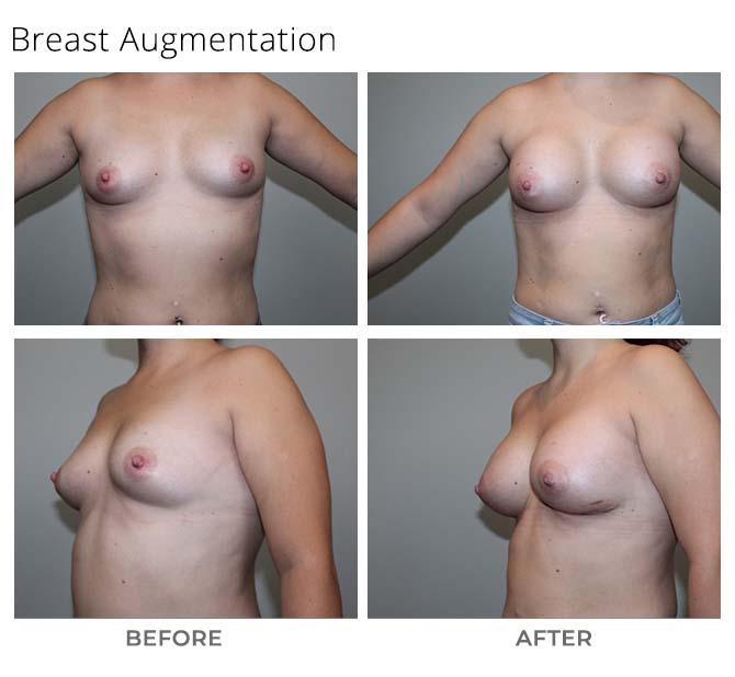 Untitled 1 - Breast Augmentation