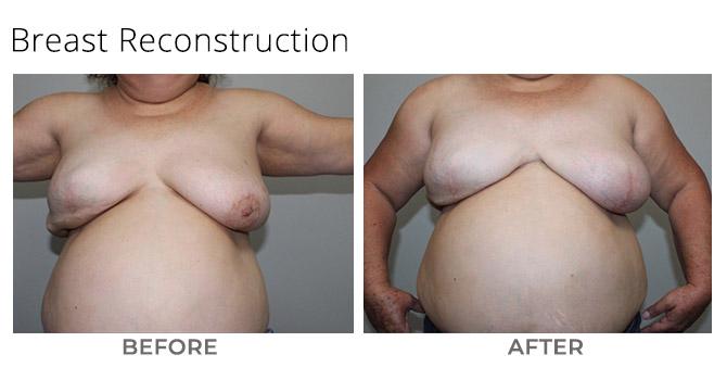 breast recon - Breast Reconstruction