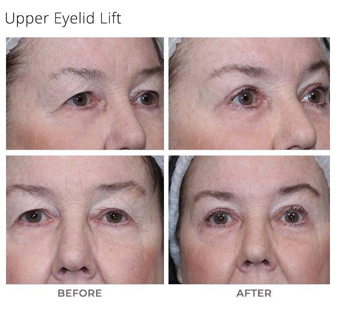 eyelid lift - Eyelid Lift