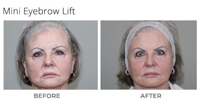 mini brow lift snz - Mini Facelift