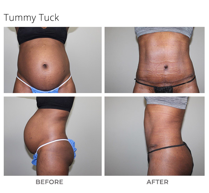 tummy tuck 2 - Tummy Tuck