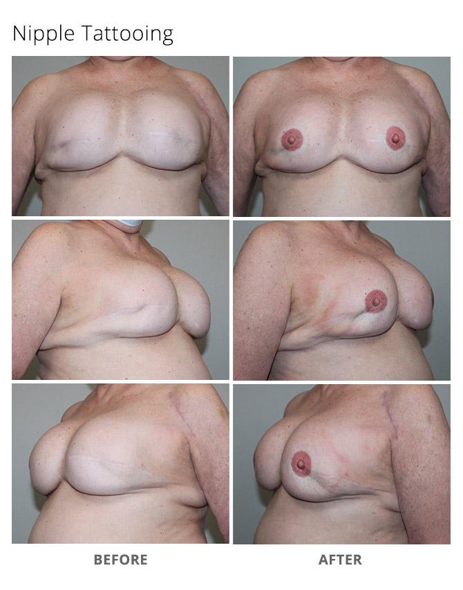 nipple tattooing 1 - Nipple and Areola Tattooing