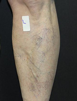 patient before - Varicose Vein Patient
